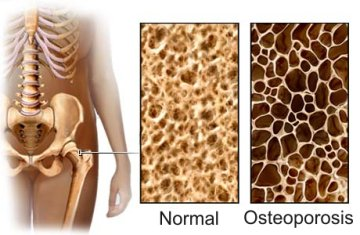 What is the best exercise for bone density?
